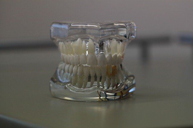 Dentures with Medicaid • Cost and coverage